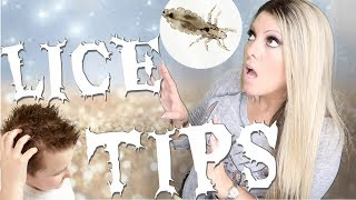 HOW TO PREVENT HEAD LICE | TREAT AND PREVENTION TIPS FOR BACK TO SCHOOL KIDS