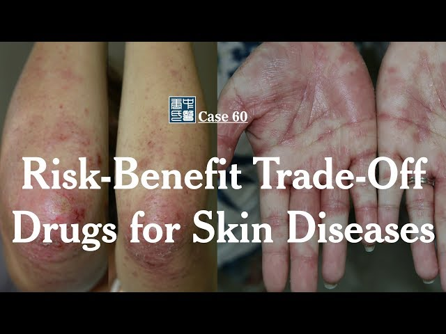 Consider the Trade-offs Between Risks and Benefits for Non-Life-Threatening Skin Diseases