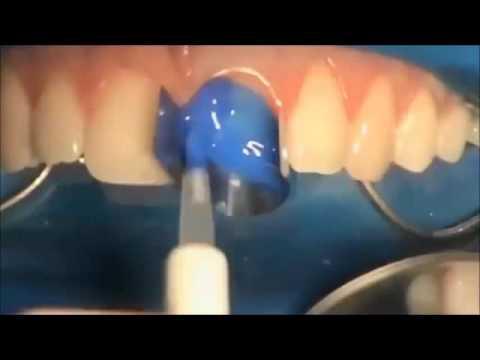 Broken teeth chipped repair to original  - Dental Restoration