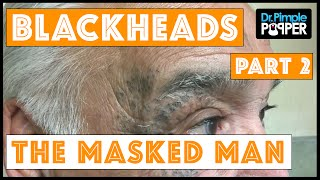 Return of The Masked Man: Blackhead Extractions!   Session 3, Part 2