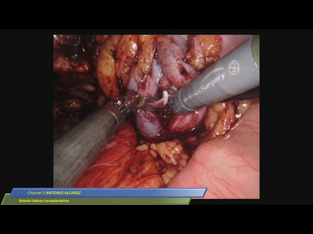 Antonio Alcaraz - Robotic Kidney Transplantation