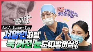(얼굴지방이식)푹 꺼진눈도 지방 성형이 가능하다고?? …