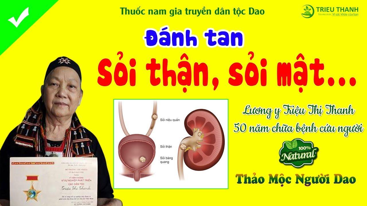 Chữa Sỏi Thận, Sỏi Mật - Lương Y Triệu Thị Thanh