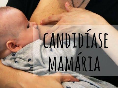Candidíase Mamária - Como Identificar E Tratá-la