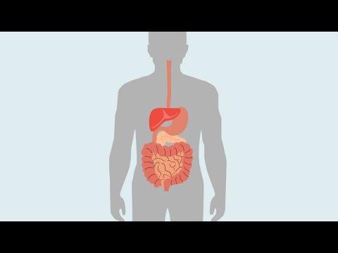 Что такое поджелудочная железа, где находится, как болит?