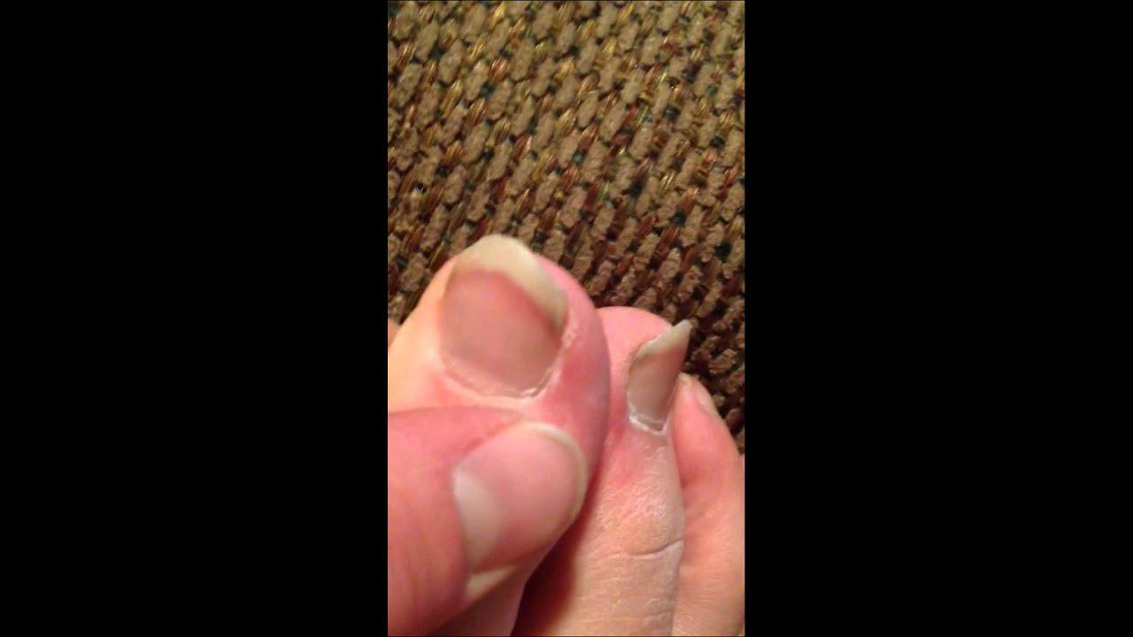 Long Toe Nails GROSS!