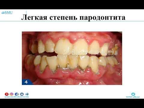 !parodontit