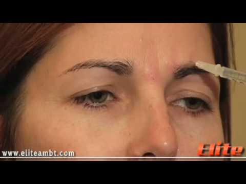 Botox - Demo Injection | Private Botox Training | Elite AMBT
