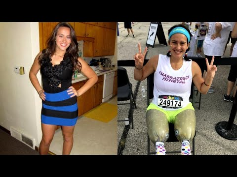 Cheerleader Takes First Steps After Losing Legs to Rare Medical Condition