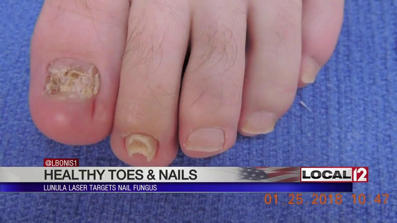 Lunula Laser targets nail fungus - YouTube