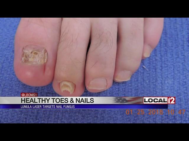 Lunula Laser targets nail fungus
