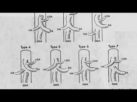 Imaging of Viseral Arteries - Prof Dr. Hassan El-kiki (Cairo2018)