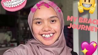 My Braces Journey: Getting braces!!!