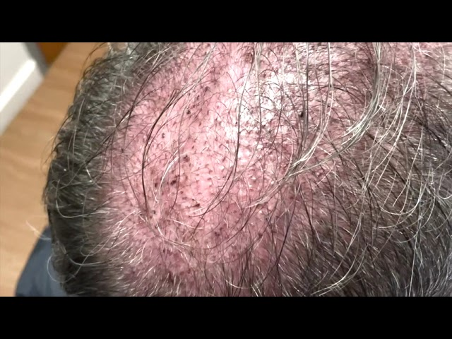 Dallas Male Hair Transplant Testimonial One Day Out