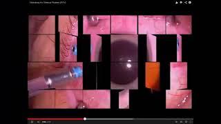 Repeat youtube video Operacion Para Eliminar Las Miodesopsias o Moscas Volantes : Cirugia Para Eliminar Las Miodesopsias