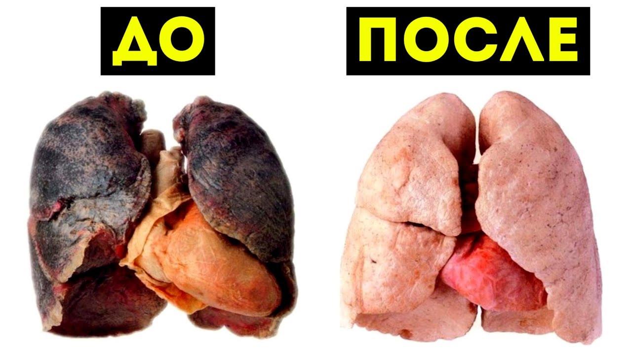 Какво ще се случи с вашия организъм, ако спрете цигарите!