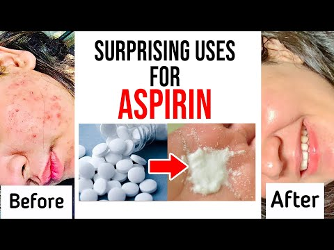Surprising Uses for Aspirin | Aspirin for Acne- Does It Work, How to Use It | Beauty Tips