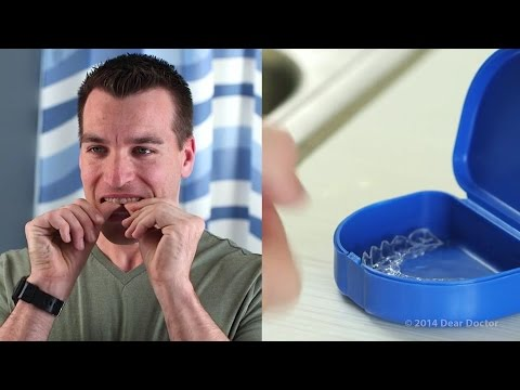 How To Clean Clear Aligners