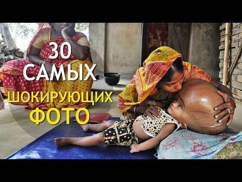 30 Самых Шокирующих ФОТОГРАФИЙ! (Слабонервным Не Смотреть) ИНТЕРЕСНОСТИ