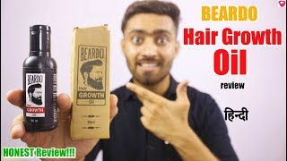 Beardo hair growth oil review in hindi | Uses, How to use, Before and After effect | QualityMantra