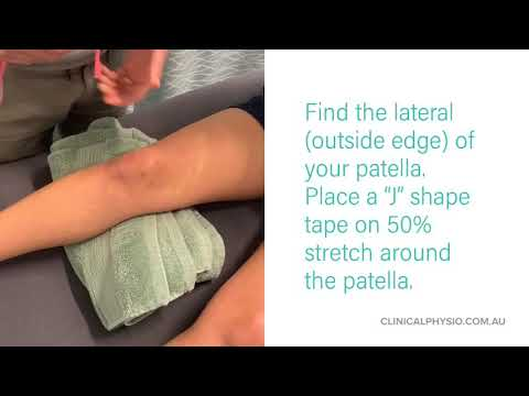 The Best and easiest Patella Taping