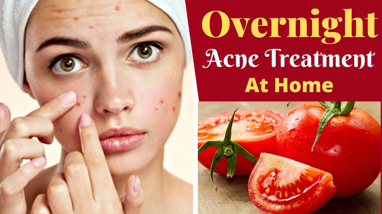 Simple Acne Treatment At Home Overnight Get Rid Of Dark Spots