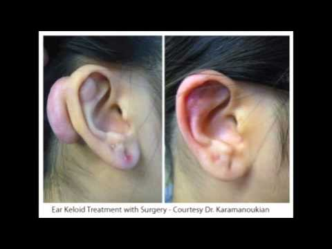 Hypertrophic And Keloid Scar Treatment Scars Youtube