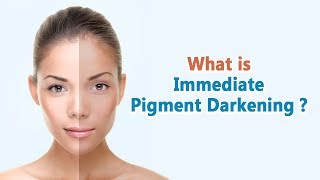 Tanning process : Immediate Pigment Darkening