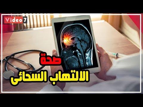 الالتهاب السحائى .. 7 خطوات للوقاية من المرض  - 11:55-2019 / 10 / 17