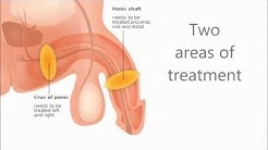 Alternative Treatment of Erectile Dysfunction with the urogold100®
