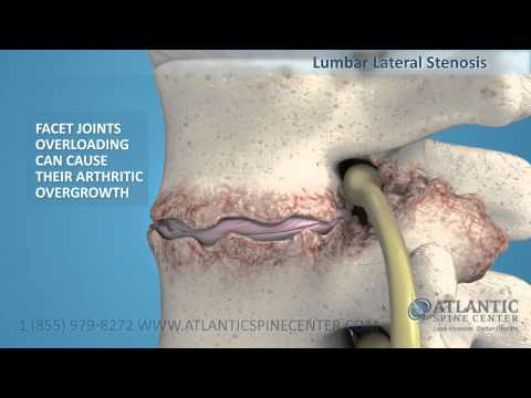 Lumbar Lateral Stenosis Overview