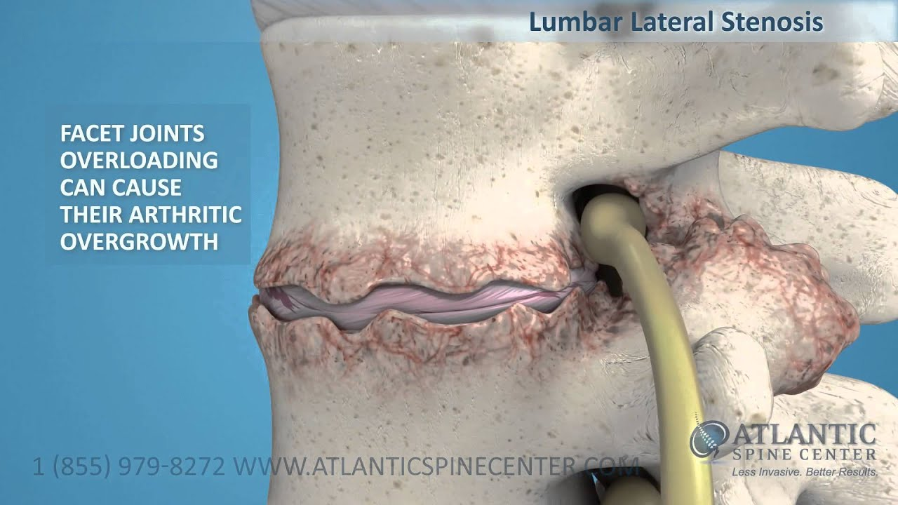 Lumbar Lateral Stenosis Overview - YouTube
