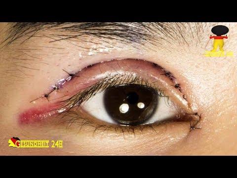 Augenlidstraffung: Antworten Auf Die Häufigsten Fragen