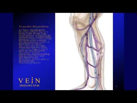 What is Superficial Venous Insufficiency?
