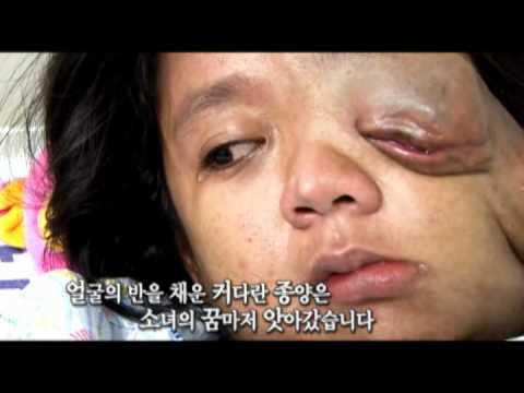 [CBS TV 수호천사] 신경섬유종 앓는 태국 소녀 펜잔