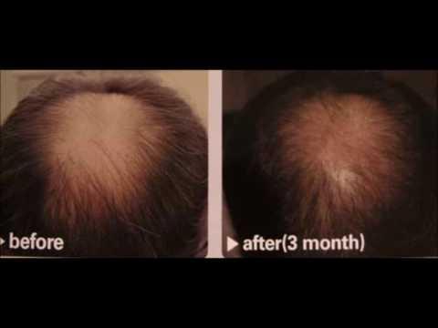 Hair Loss With Apple Cider Vinegar