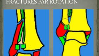 traumatologie LES FRACTURES MALLEOLAIRES 2