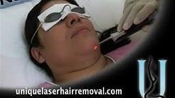 Laser Hair Removal! Weston, Pembroke Pines FL 33025
