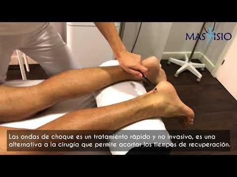 Como tratar tendinitis en el tendon de aquiles