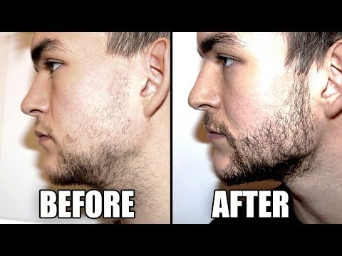 Trying A Beard Growth Kit For 2 Months - My RESULTS | CPH Grooming Review