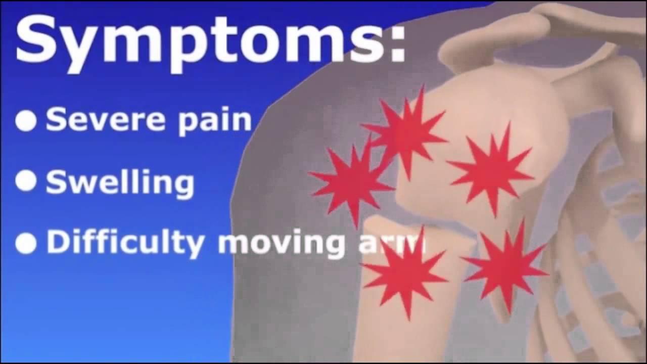 Humerus Fracture Broken Upper Arm Youtube