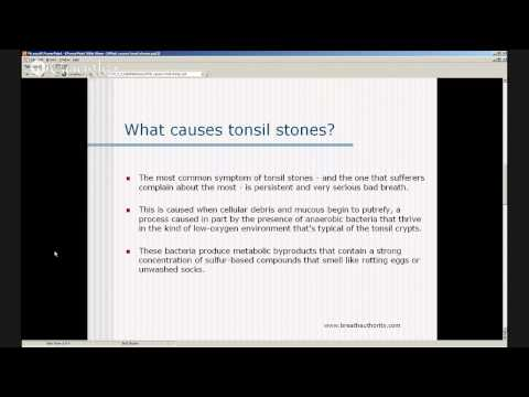 Tonsil Stones Causes - Tonsillolith Symptoms - Tonsil Stones Removal