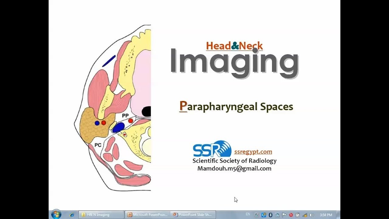 Imaging Of Parapharyngeal Spaces Prof Dr Mamdouh Mahfouz In