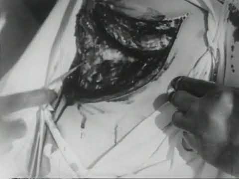 Thoracoplasty (Lechner-Medizin, 1927)