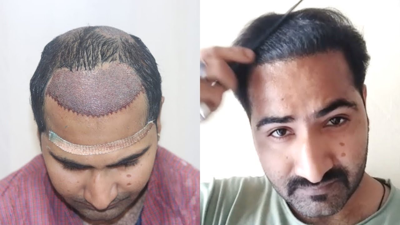 Case study: Natural Look Hair Transplant Result  | Hair Transplant in india