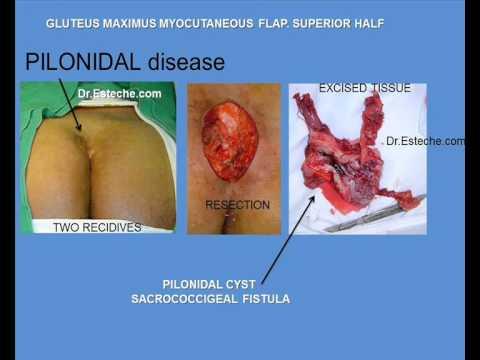 pilonidal disease GLUTEUS MAXIMUS myocutaneous flap