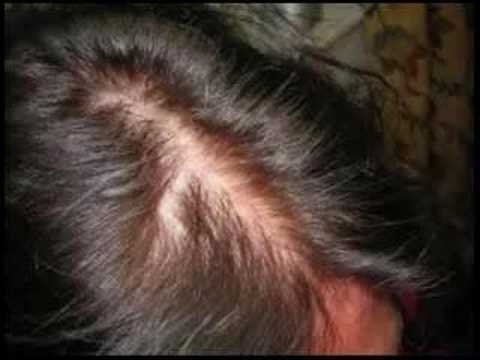 can-you-stop-hair-loss-and-regrow-your-hair-naturally?