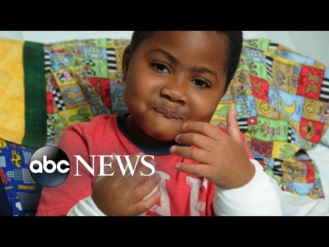 Historic Dual Hand Transplant Gives Boy Second Chance at Life