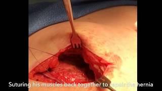 No Mesh Double Inguinal Hernia Repair