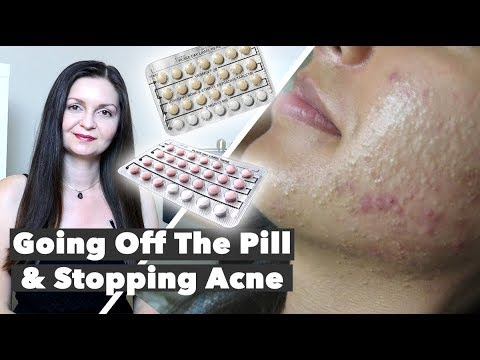 coming-off-birth-control-acne---hormonal-acne-treatment---post-pill-acne
